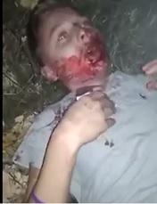 Chechen Girl Beaten Bloody by Russians | theYNC->