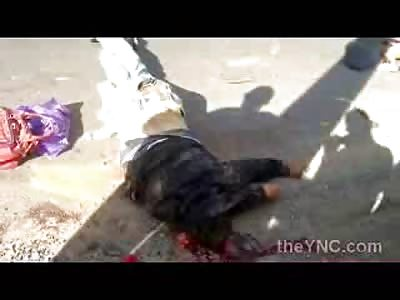Man Dies Horrifically .. Head Splattered in his Fonzi Leather Coat